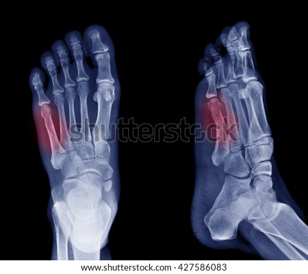 x-ray image of bone fracture at 5th Metatarsal  left foot  - stock photo