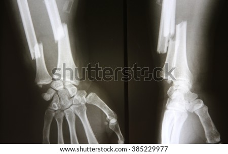 X-ray image of broken forearm, AP and lateral view show fracture of ulna and radius bone - stock photo