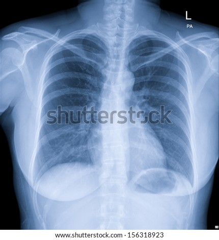 X-Ray Image Of  Chest - stock photo