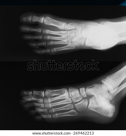 X-ray image of foot, AP and oblique view, show fracture of calcneus and toe - stock photo
