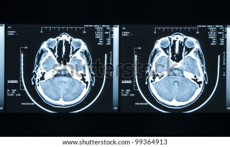 X-Ray image of human brain - stock photo