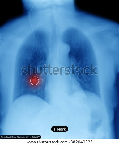 X-Ray Image Of Human Chest - stock photo