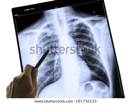 X-Ray Image Of Human Chest for a medical diagnosis and hand pointing - stock photo