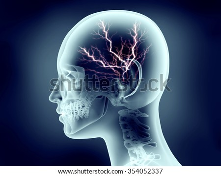 x-ray image of human head with lightning - stock photo