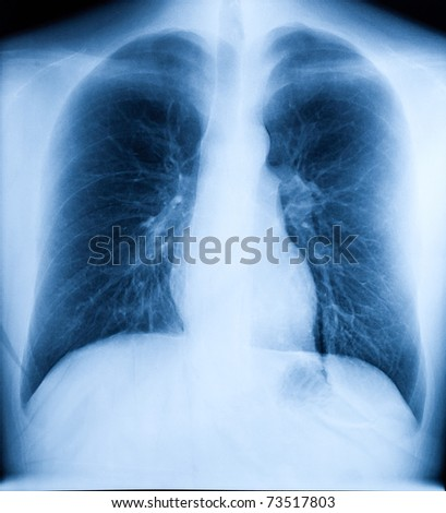 X-Ray Image Of Human Healthy Chest - stock photo