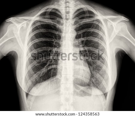 X-Ray Image Of Human Healthy Chest MRI - stock photo