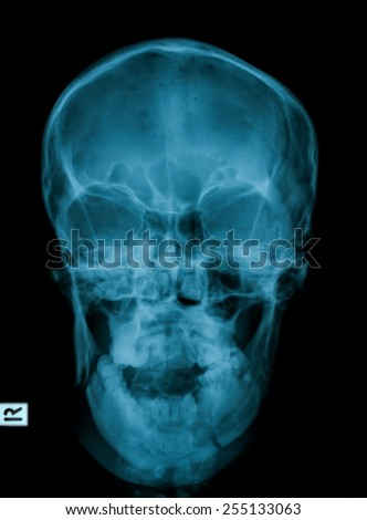 X-ray image of skull, frontal view - stock photo