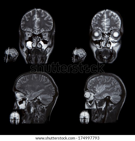 X-ray image of the brain computed tomography  - stock photo