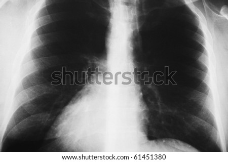 x-ray image of the thorax of  man - stock photo