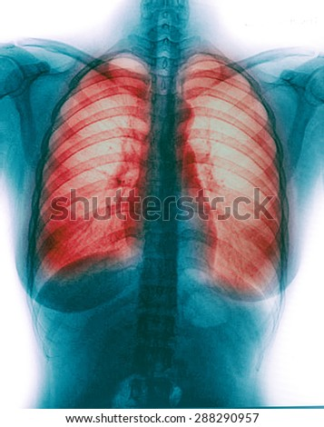 X-Ray Image Of Woman Chest for a medical diagnosis - stock photo