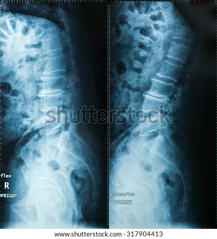 X-Ray image, View of neck men for medical diagnosis. - stock photo