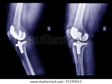 x-ray knee - stock photo