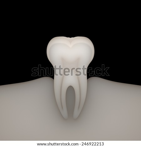 X-ray molar on black background. - stock photo