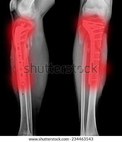 x-ray of a cat's broken leg after surgery - stock photo