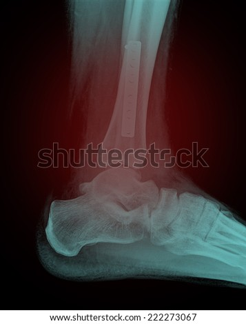x-ray of a foot with plate and screws seen from the side - stock photo