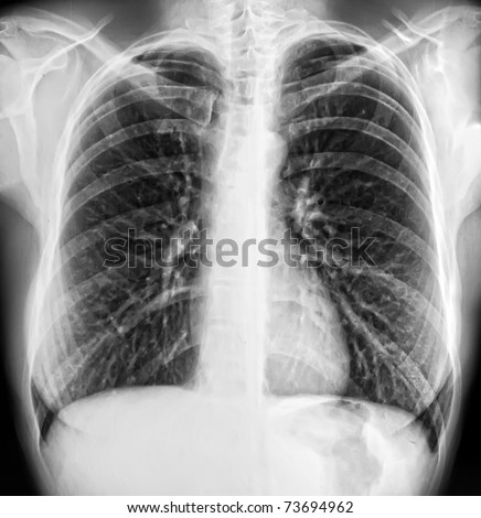 x-ray of a human thorax - stock photo