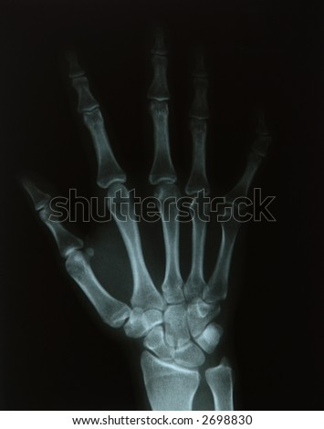 X-ray of a young woman's hand - stock photo