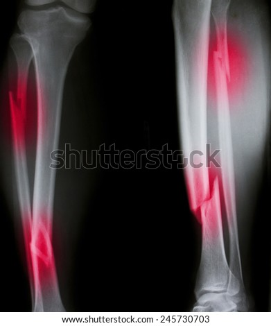 X-ray of both human legs (broken legs) - stock photo