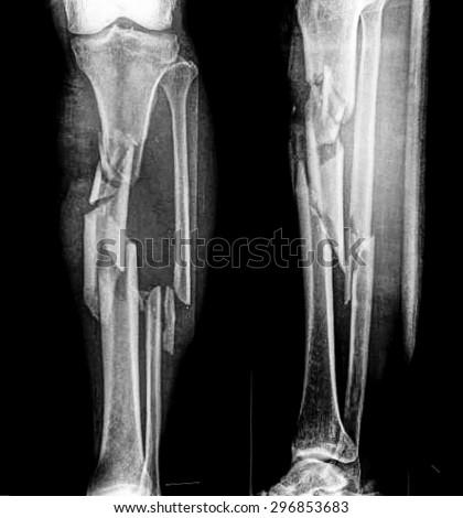 X-ray of broken leg - stock photo