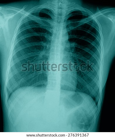 X-ray of chest of healthy patient - stock photo