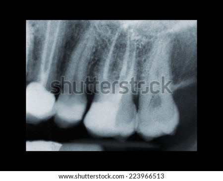 X-ray of dental Filling and devitalization - stock photo