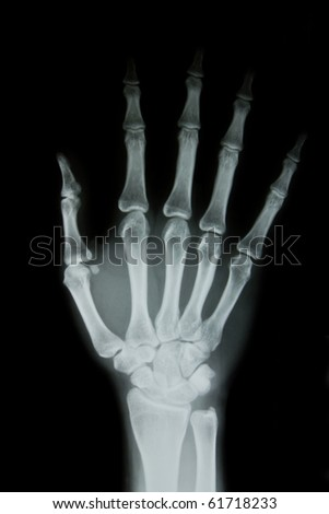 X-ray of human hand - stock photo