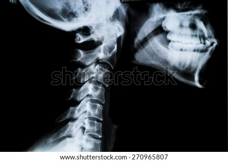 X ray of Human neck and Jaw - stock photo