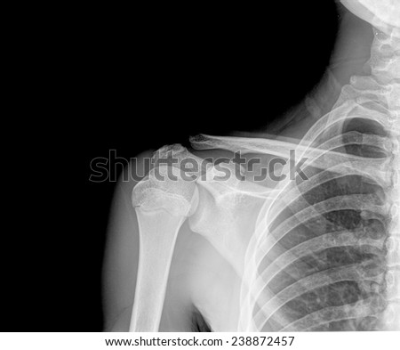 X-ray of human shoulder. front view - stock photo