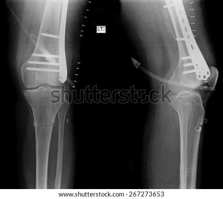 X-Ray of knee joint / Advanced osteoarthritis. - stock photo