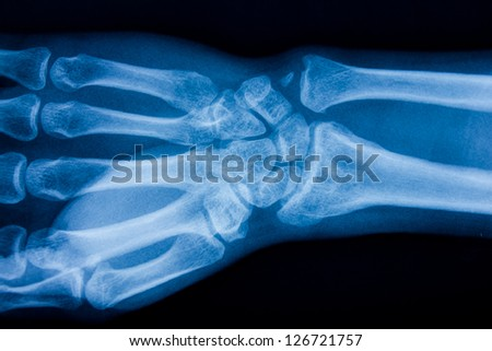 x ray of male hand - stock photo