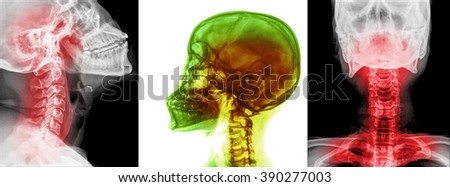 X-ray of neck and cervical spine, front and side view. - stock photo