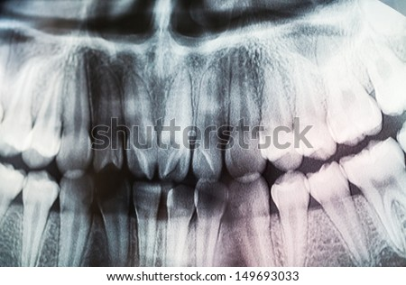 x-ray of teeth - stock photo