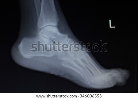 X-ray orthopedic medical CAT scan of painful foot injury in traumatology hospital clinic. - stock photo