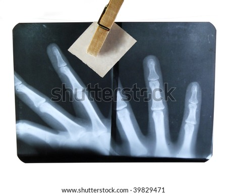 X-ray photography on a white background - stock photo