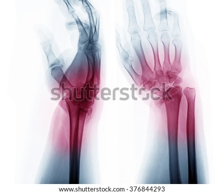 X-ray photos of hand bone fracture patients - stock photo