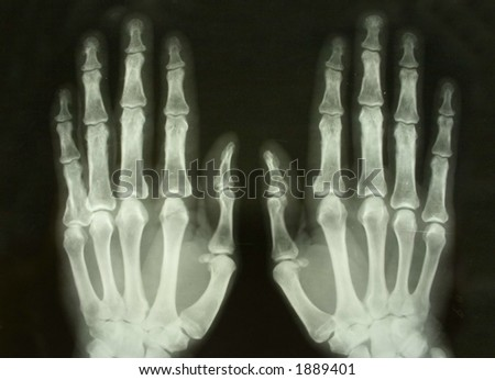 x-ray picture of the palms - stock photo