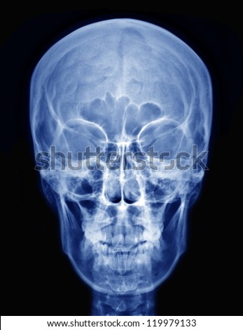 X-ray picture of the skull - stock photo