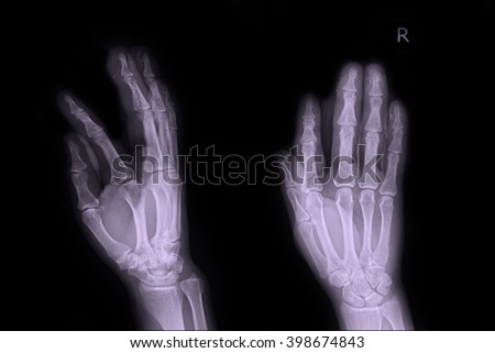 X-ray right hand  - stock photo