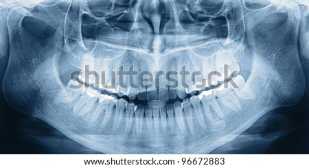 X-ray scan of humans teeth - stock photo