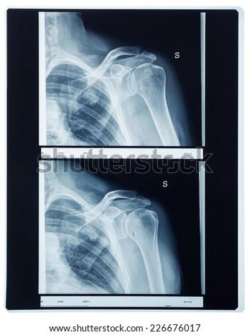 X-ray shoulder - stock photo