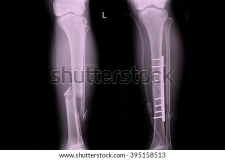 X-ray show fracture leg tibia and fibular - stock photo