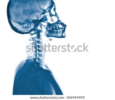 X-ray skull and Stroke ( cerebrovascular accident (CVA) ) - stock photo