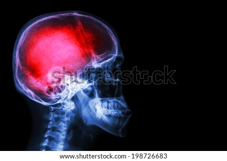"X-ray skull & cervical spine (lateral) with ""Stroke"" - stock photo"