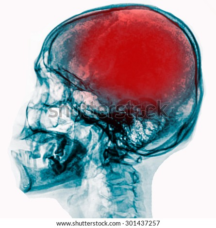 """X-ray skull & cervical spine (lateral) with """"Stroke"""" - stock photo"""