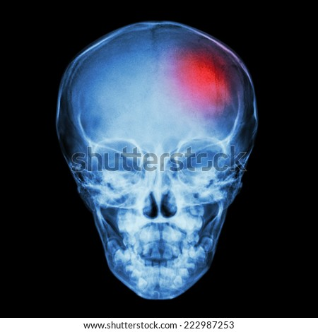 X-ray Skull of child and Stroke (cerebrovascular accident) - stock photo