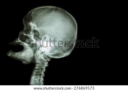 X-ray skull open mouth ( side view ) and Stroke ( Cerebrovascular accident ( CVA ) ) and blank area at right side - stock photo