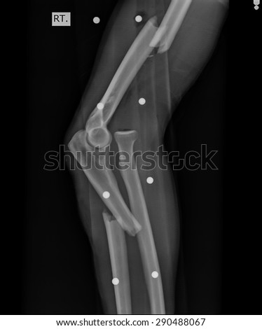 X-ray view of elbow. - stock photo
