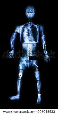 X-ray whole body and multiple fracture. He was operated and internal fixation by plate & screw - stock photo