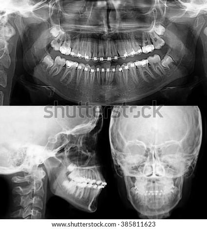 x-ray with dental brackets, orthodontic treatment - stock photo