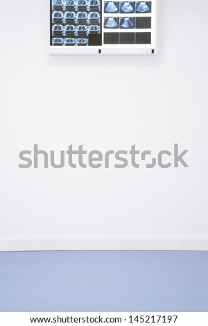 X-rays and ultra sound results hanging on wall - stock photo